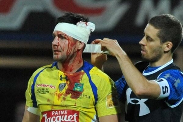 worst rugby injuries